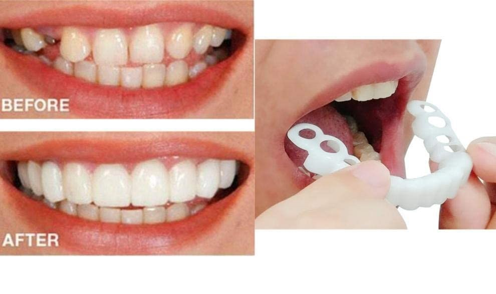 Snap on Smile Appointment