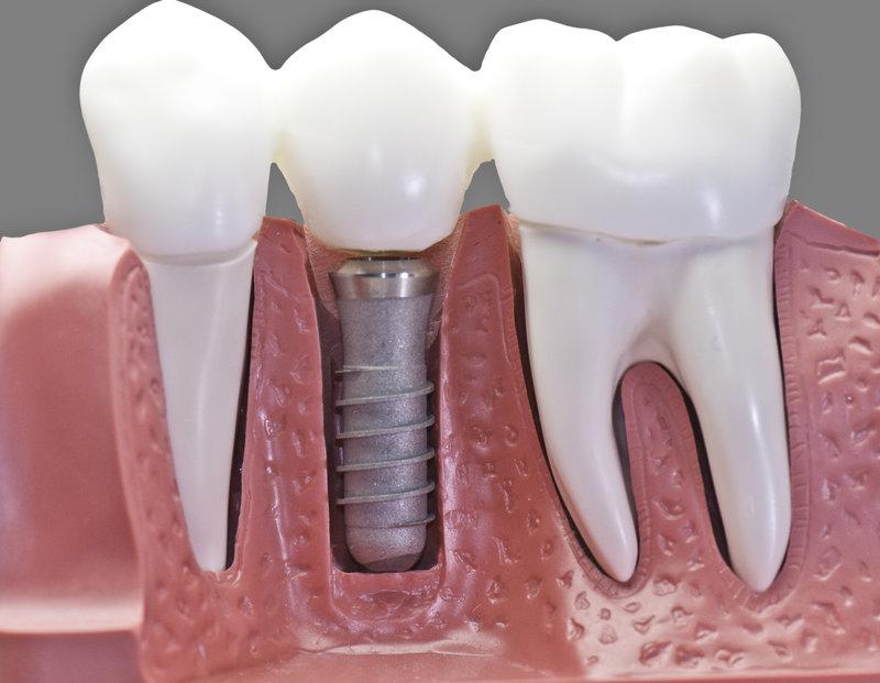 Implants in Ballantyne NC
