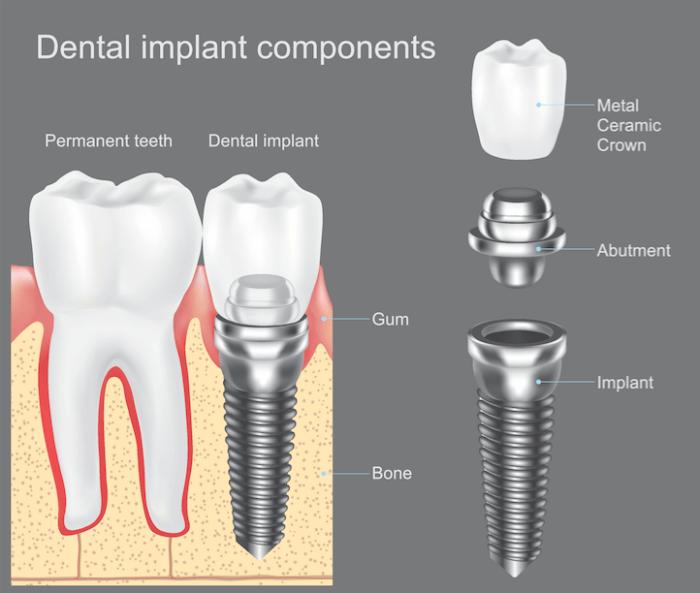 Dental Implants in Ballantyne NC