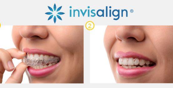 Dental Invisalign Service in Charlotte NC